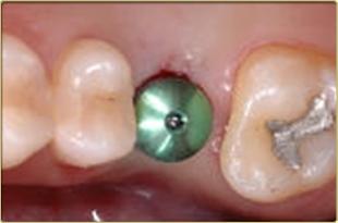 微創植牙-植牙手術剛完成時照片