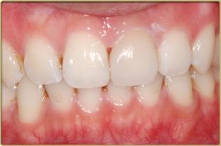 牙齒美白後